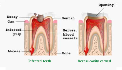 access cavity root canal