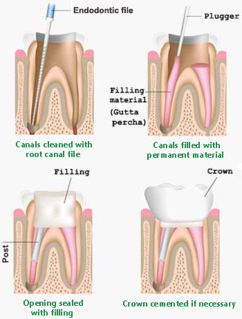 cleaning and filling root canal