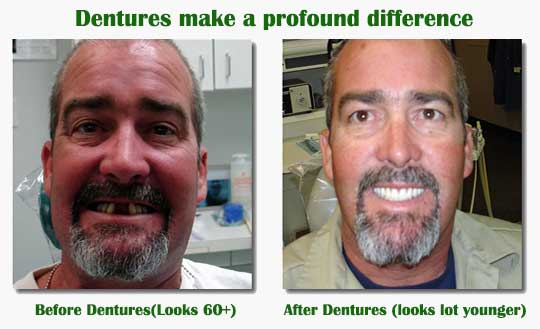 dentures before after