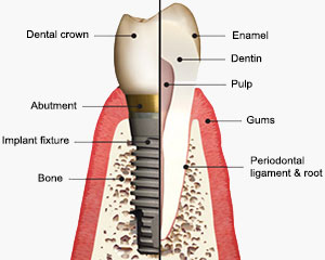 dental implant construction