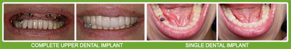 denture implant fitment
