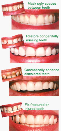 dental veneer before after