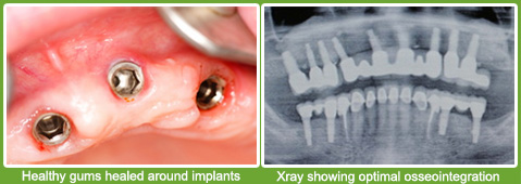 good osseointegration for implants