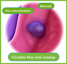 oral cancer screening with toluidine blue stain