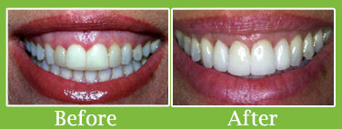 gum contouring before after