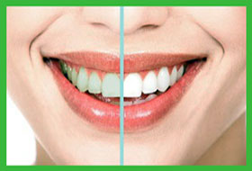teeth whitening result