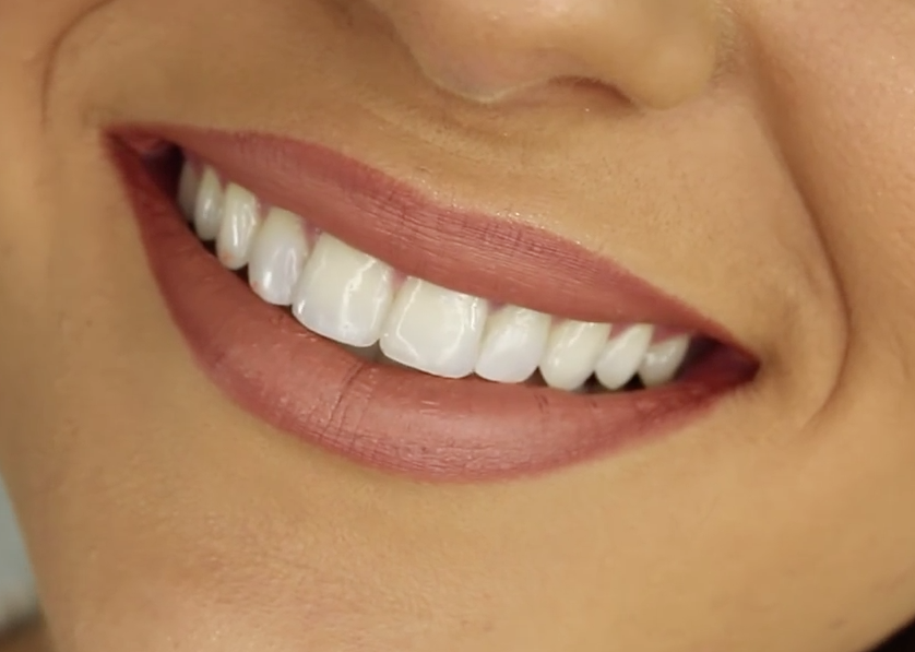 Teeth bonding pros and cons
