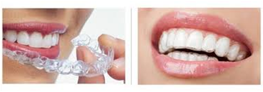4 Merits of Getting Invisalign