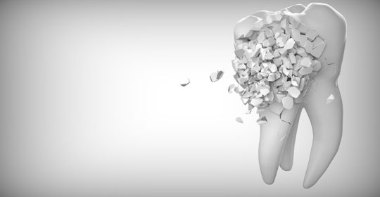 How Neglecting Your Oral Hygiene Can Lead to Loss of Teeth