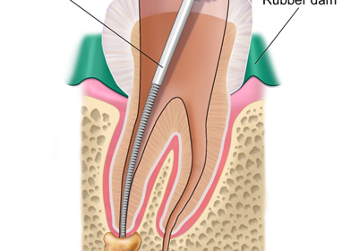 Why and When You Need Root Canal Treatment