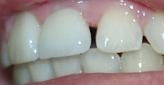 Treating Dental Gaps with Bonds